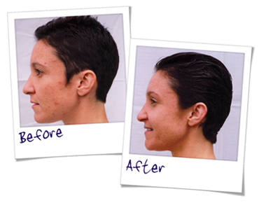 Can microdermabrasion help with acne scars? - SkinBase™ Facial