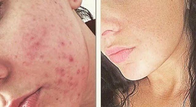 SkinBase Microdermabrasion Transformation Tuesday…