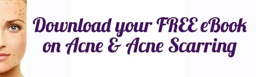 Make 2016 the year you treat your acne with our FREE acne & acne scarring eBook