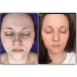 SkinBase Microdermabrasion Tuesday Transformation…