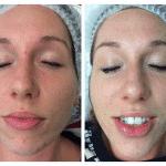SkinBase transformation time … October 14th 2015
