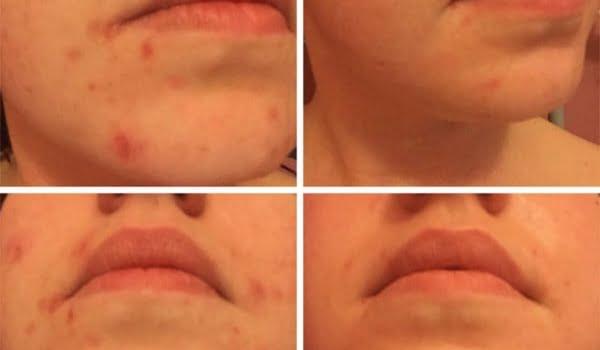 SkinBase Tuesday Transformation
