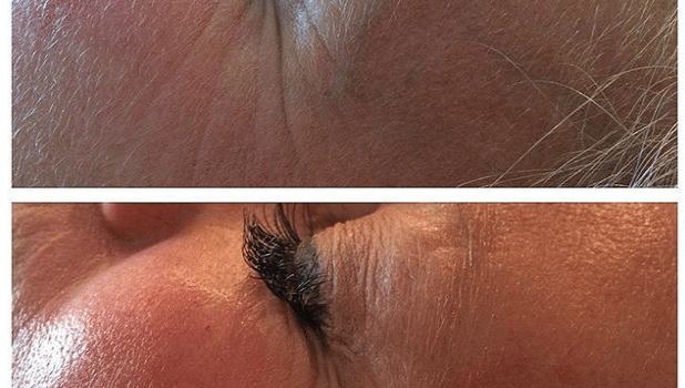 SkinBase Microdermabrasion – Tuesday Transformation – October 20th 2015