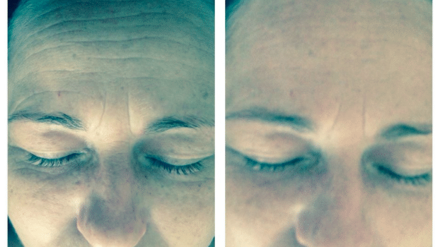 SkinBase Transformation Time … August 27th 2015