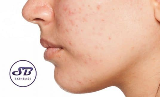 manage acne