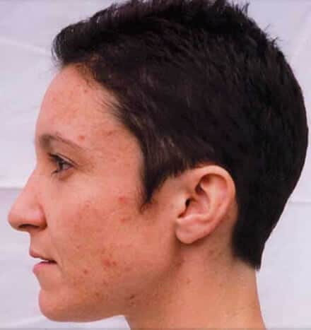 Angela Wainwright - before microdermabrasion treatment