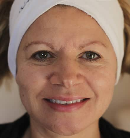 Donna Ridland - after microdermabrasion treatment