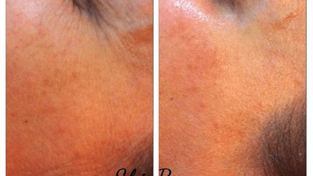 SkinBase Microdermabrasion – Tuesday Transformation – October 27th 2015