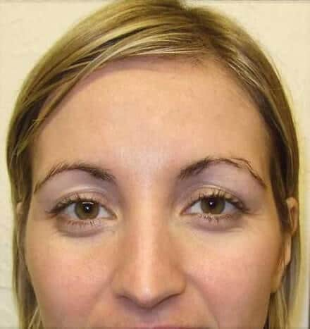 Hannah Slater - after microdermabrasion treatment