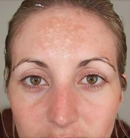 Hannah Slater - before microdermabrasion treatment