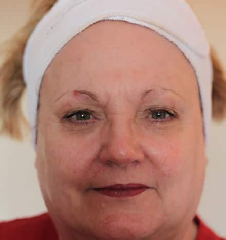 Lynne Colclough - after microdermabrasion treatment