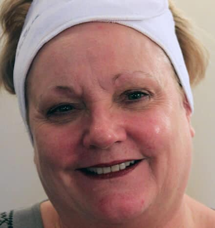Lynne Colclough - before microdermabrasion treatment