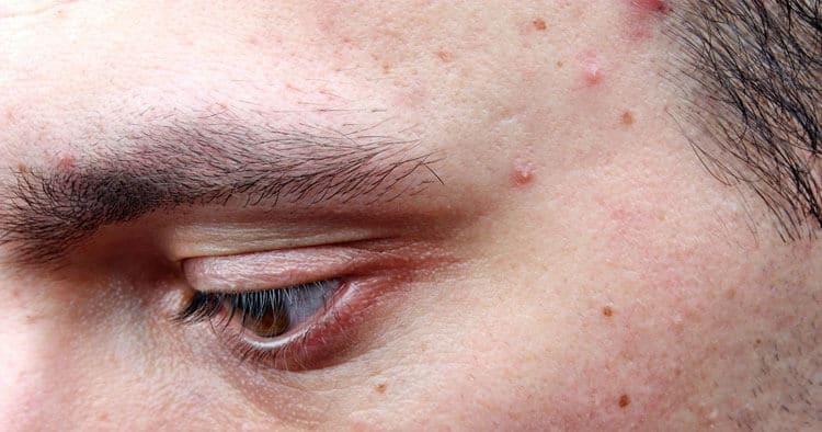 Microdermabrasion for Acne Scars - SkinBase™ Facial