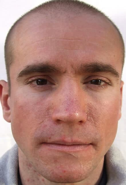 Oliver Wilcox - after microdermabrasion treatment