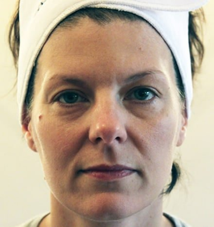 Rachel Dodd - before microdermabrasion treatment