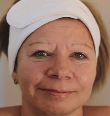 Val Seale - after microdermabrasion treatment