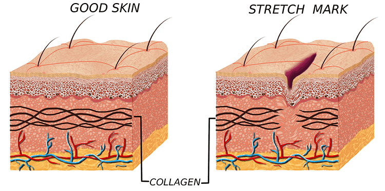microdermabrasion to remove stretch marks