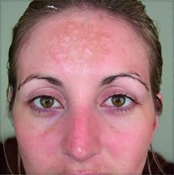 Where do dark spots and pigmentation come from?