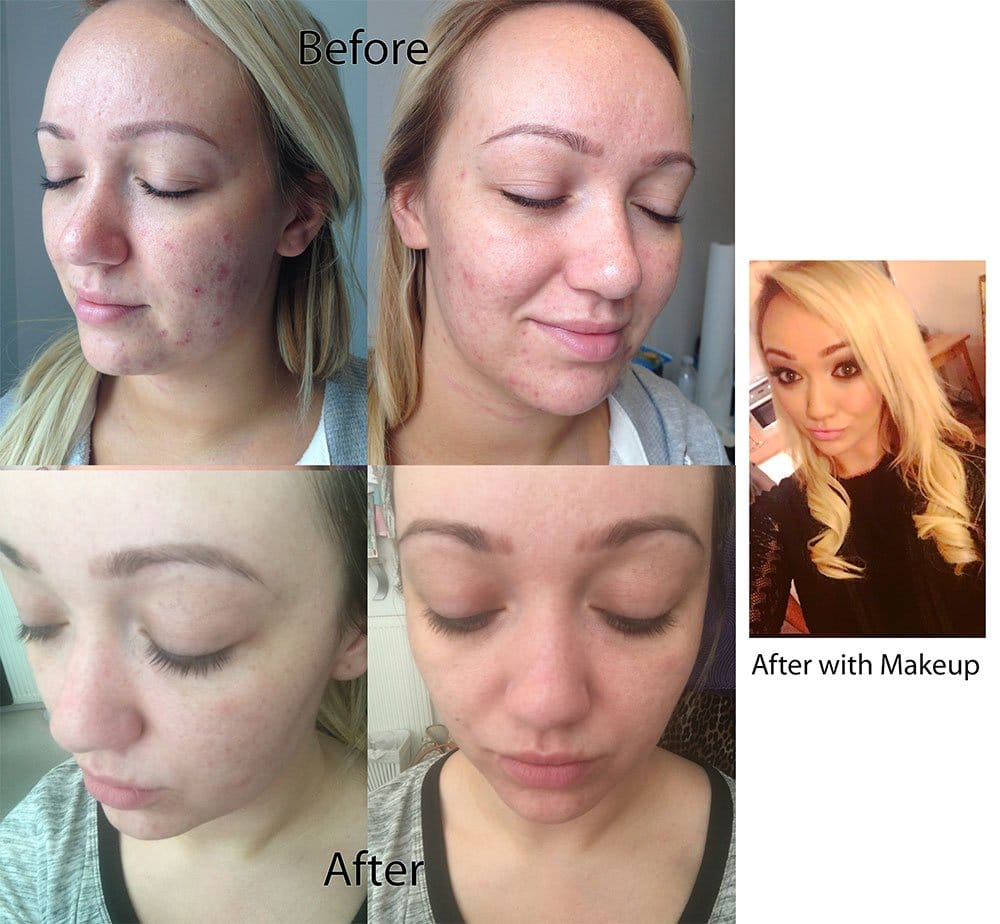 ipl-before-and-after-natalie