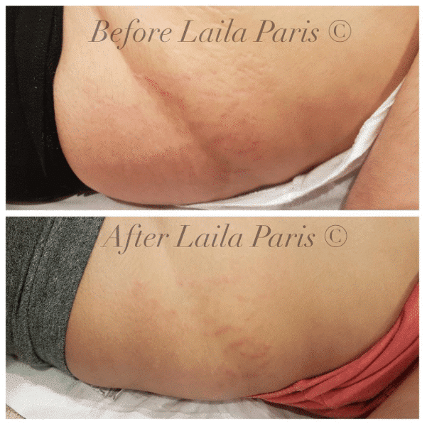 How can microdermabrasion help stretch marks
