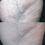 Vascular lesion treatment