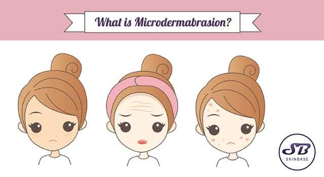 what is microdermabrasion_infographic