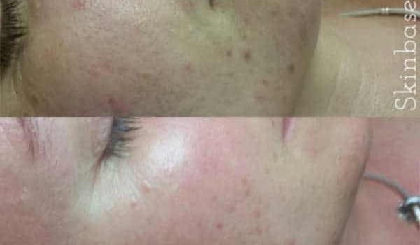 SkinBase Transformations – Before and After Microdermabrasion
