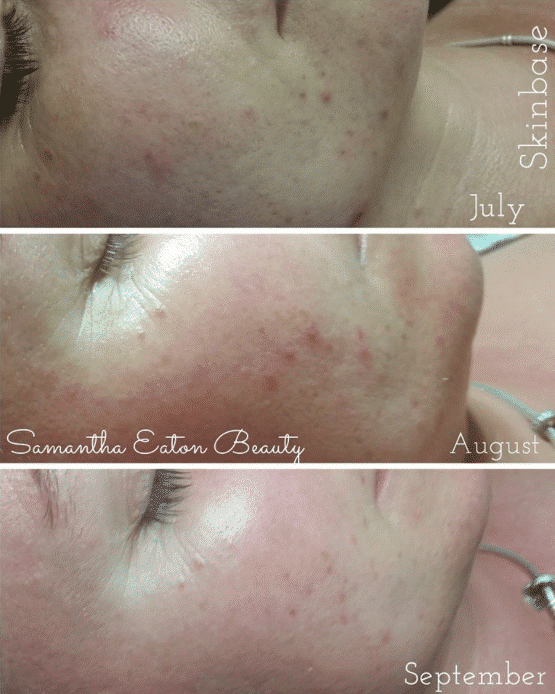 before after skinbase microdermabrasion