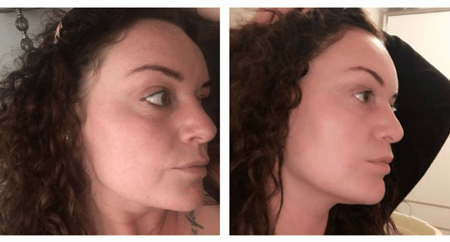 Skin Transformation – Before and After One SkinBase Facial…