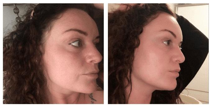 SkinBase microdermabrasion before after