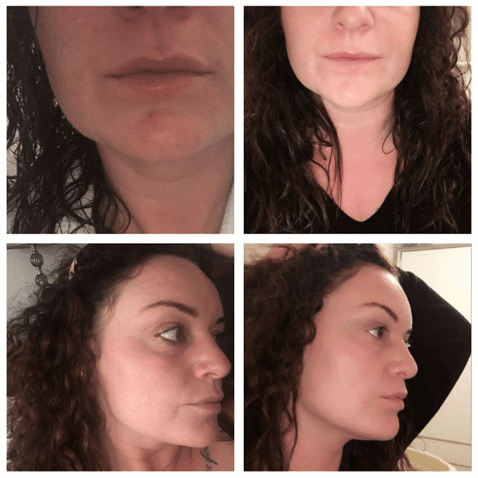 SkinBase microdermabrasion before after