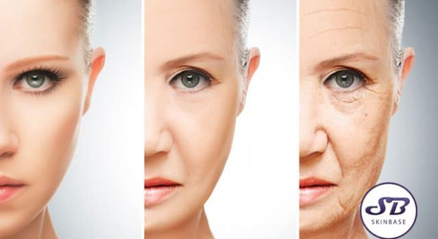 Surprising things that might be giving you wrinkles