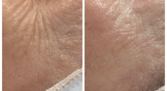New treatment to combat ageing – No need for needles