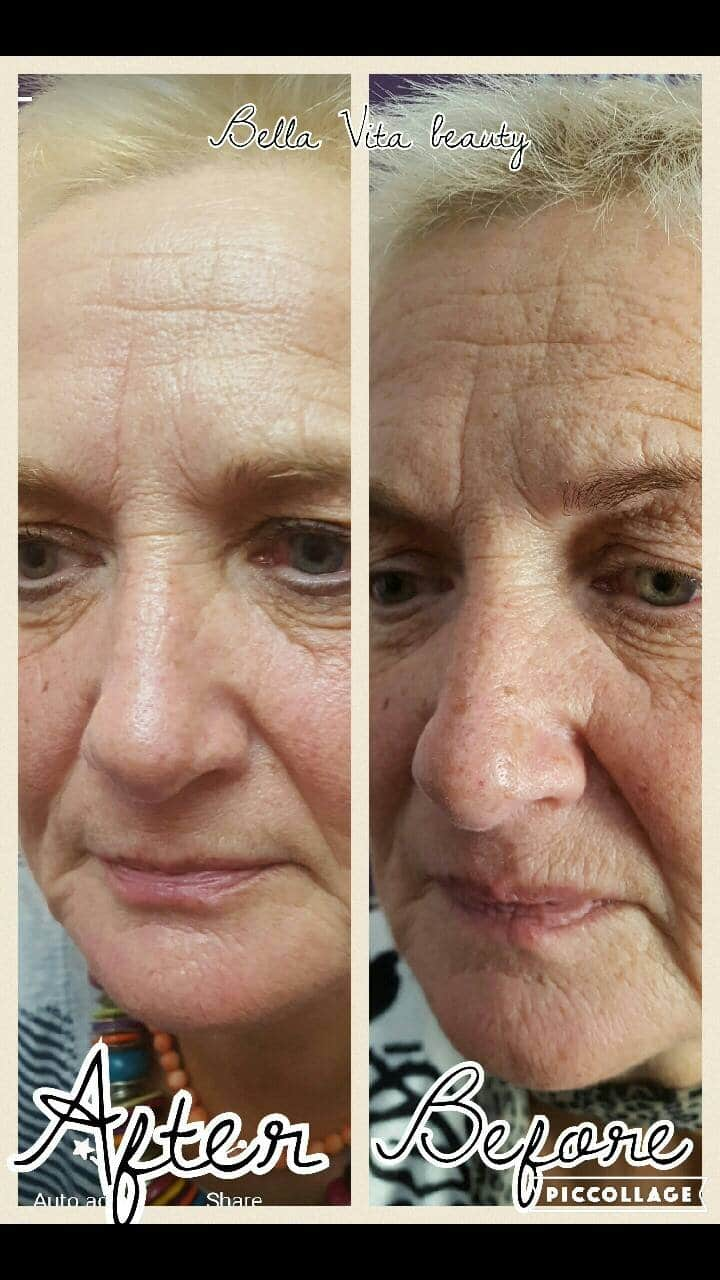 SkinBase microdermabrasion before and after