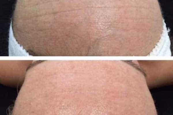 microdermabrasion skin tone