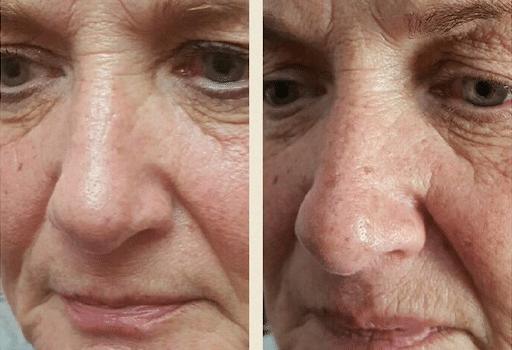 SkinBase microdermabrasion transformations – ageing skin