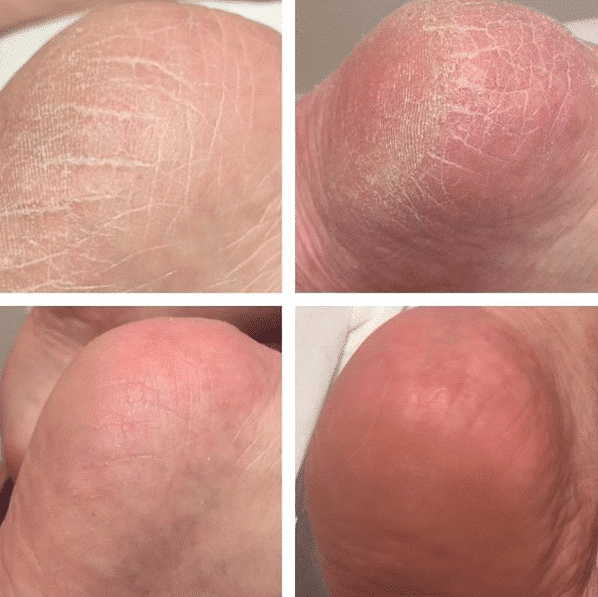 SkinBase microdermabrasion for your feet - SkinBase