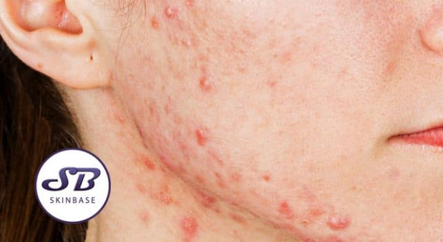How to get rid of acne scarring using microdermabrasion