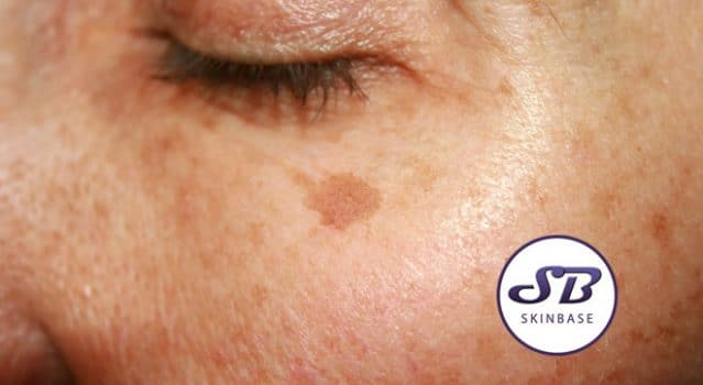 Hyper-pigmentation – What is it? How can I treat it?