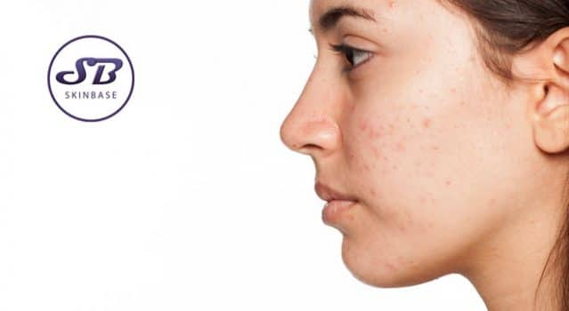Is bacteria really responsible for acne?