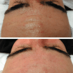 SkinBase transformations – some of our January favourites…
