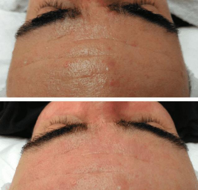 SkinBase transformation