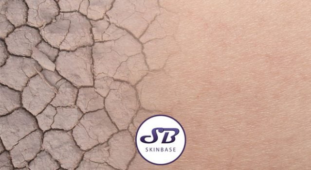 Dry skin. The possible causes, how to apply makeup to it and how to get rid of it.