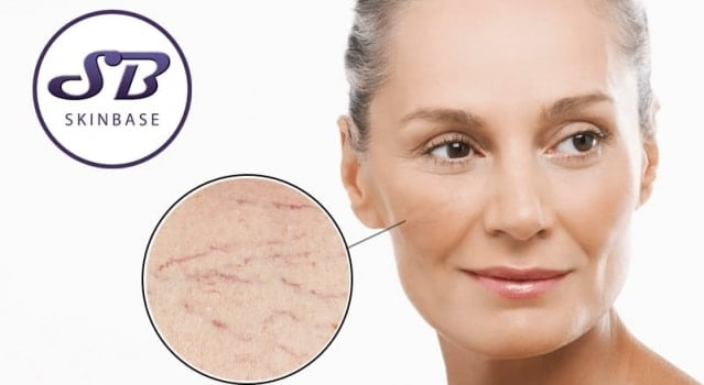 Unsightly thread veins? We have the answer.