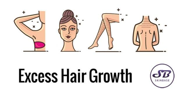 Excess hair growth? Hirsutism, can we treat it?