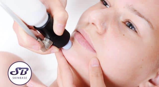 Microdermabrasion Explained