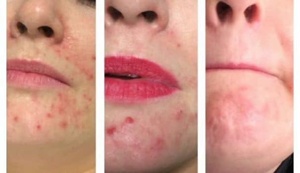 Acne Treatment Focus – More Great Results