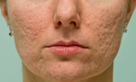 Doing enough for acne sufferers