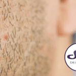 What causes ingrown hairs and how to treat them