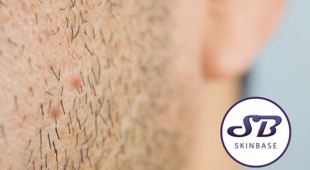 Ingrown hairs – What causes them and how to treat them